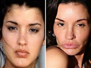 janice-dickinson-before-after-plastic-surgery