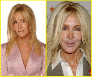 joan-van-ark-plastic-surgery-before-and-after