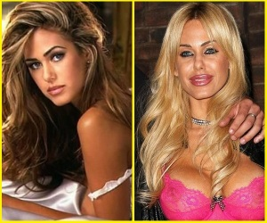 shauna-sand-plastic-surgery-before-and-after